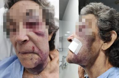 Injuries suffered by 79-year-old Daniela.