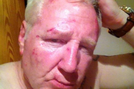 British bar owner attacked in Porto Cristo