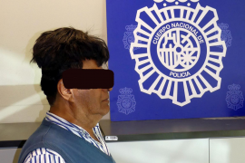 A man poses with a toupee with a drug package